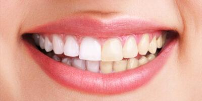 Metode-moderne-pentru-albirea-dintilor