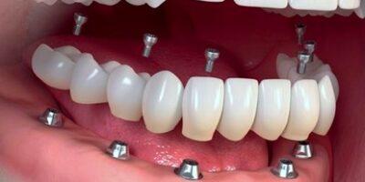 proteza-fixa-implanturi